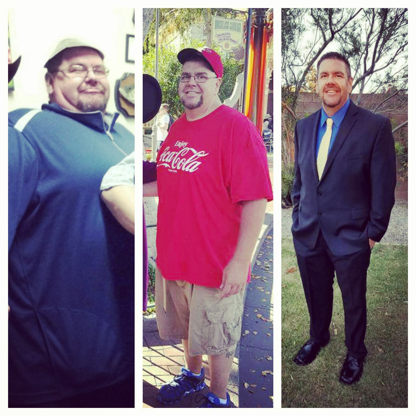 Coastal Center For Obesity Patient Support Weight Loss Surgery